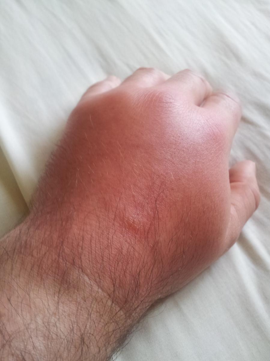 horsefly bite